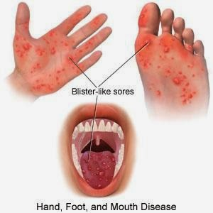 Hand Foot and Mouth Disease flu singapura