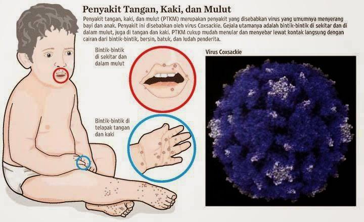 penyakit kaki tangan dan mulut